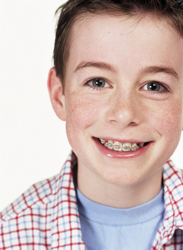Boy smiling with braces from his Portland pediatric dentist at Great Grins for KIDS - Portland.