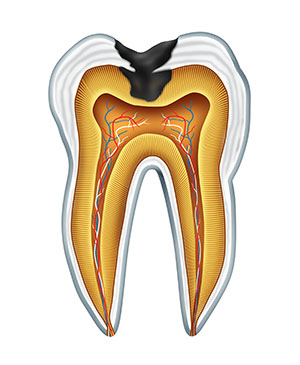Diagram of a tooth with a cavity caused by tooth decay used by Portland pediatric dentist at Great Grins for KIDS - Portland.